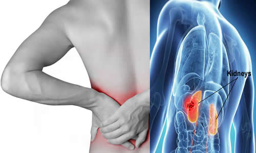 Kidney Infection Or Lower Back Pain? How To Distinguish ...