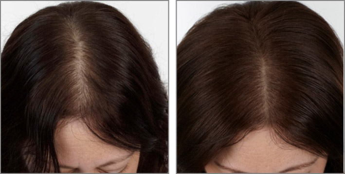 Here is What Kills Hair Follicles - AVA360 Entertainment